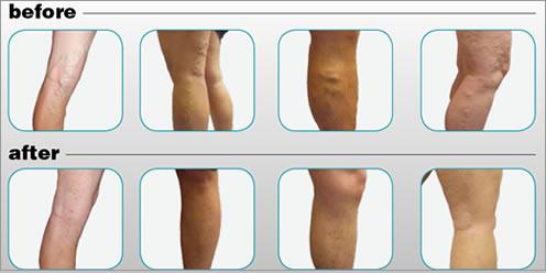 BTG's varicose vein treatment wins U.S. approval